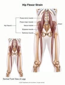 hip flexor injury symptoms picture 3