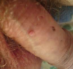 genital wart on underside of penis picture 5