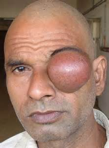 pain after wart removed from eyelid picture 2