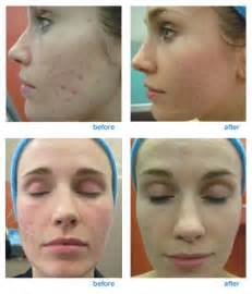fractal skin procedure picture 14