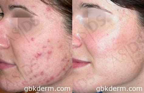 acne scar treatment in sf picture 18