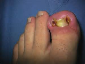 pictures of toenail fungus picture 7