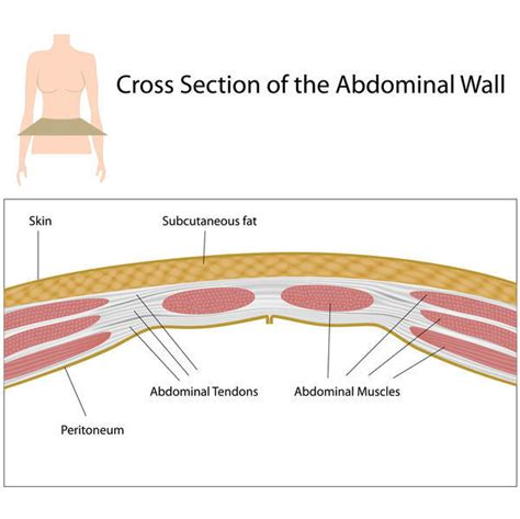 abdominal muscle pull picture 22