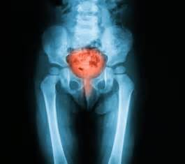early signs of bladder cancer picture 3