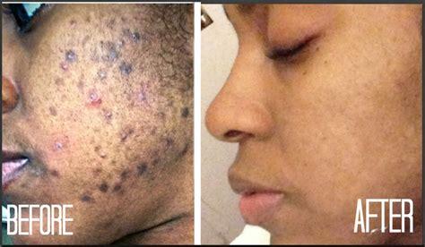 how to darken scar picture 3
