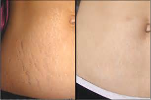 revitol scar cream after i finish micro needling on face picture 9
