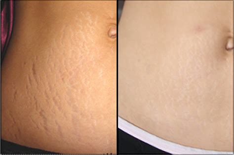 how to remove stretch mark naturally picture 3