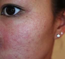 clove oil allergic skin reaction symptoms picture 5