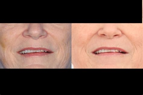 dermapen stretch marks before and after picture 5