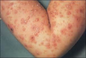 ciri penis herpes picture 2