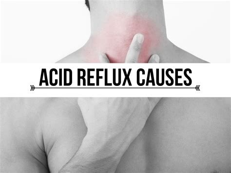 acid reflux and diet picture 1