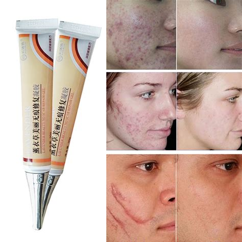 aminosculpt for acne scars and stretch marks picture 9