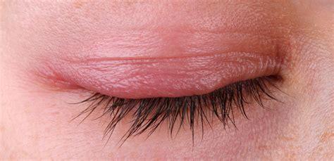 dry skin blepharitis picture 7