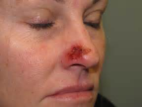 thuja treat actinic keratosis picture 7