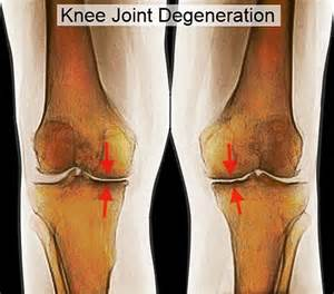 bilateral degenerative joint disease of knee picture 3