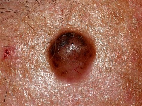 pictures of herpes picture 9