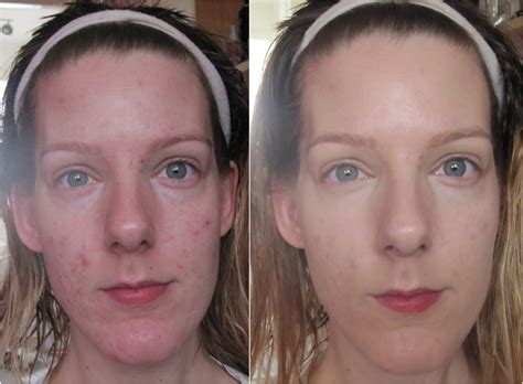 glutimax cream before and after picture 2