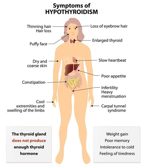 can thyroid nodule cause heart flutter picture 6