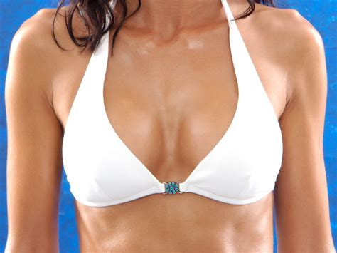 financing for breast augmentation picture 18