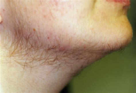 testosterone hair loss female picture 2
