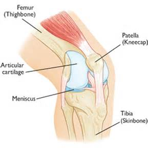 knee and shoulder joint pain, sarcoidosis picture 3