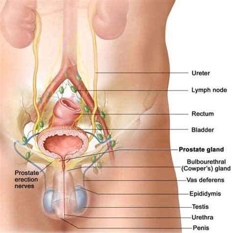 how long for prostate swelling to subside after picture 6