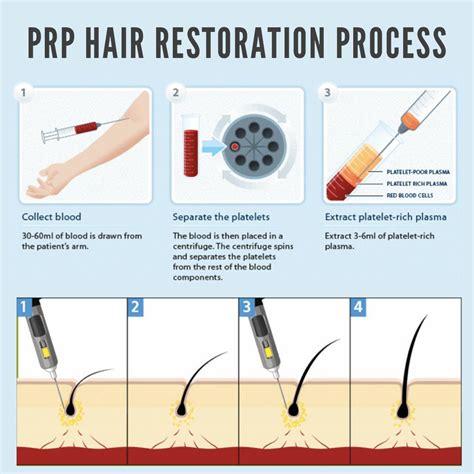 alpharetta hair removal picture 11