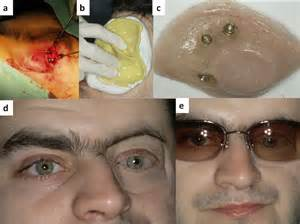 piece of artificial skin picture 9