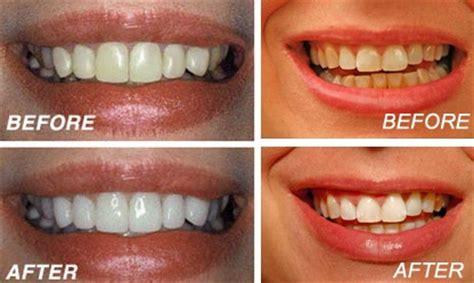 hydrogen peroxide baking soda whiten teeth picture 7