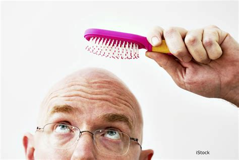new baldness cure breakthroughs 2014 picture 3