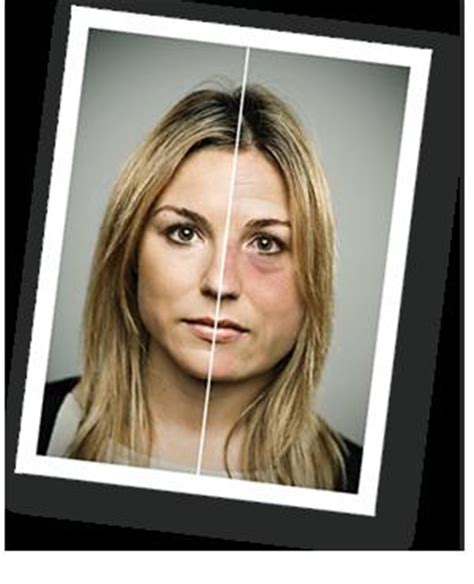 alcoholism; physiological changes in the aging picture 10