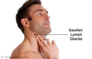 swollen glands chills fever head ache loss of picture 5
