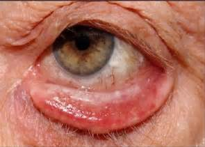 lower eyelid surgery muscle atrophy picture 7
