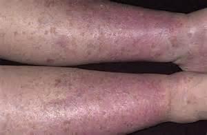 low blood presure purple feet picture 9