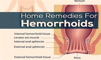 searching for hemorrhoidal picture 2