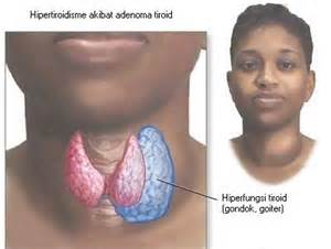 thick thyroid gland picture 2