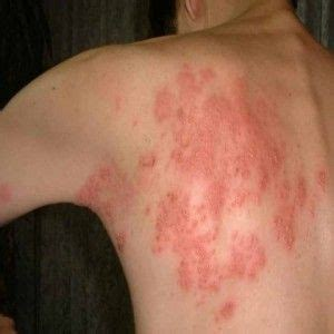 developing cure for herpes picture 9