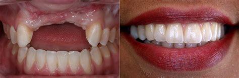 bone loss in teeth picture 5