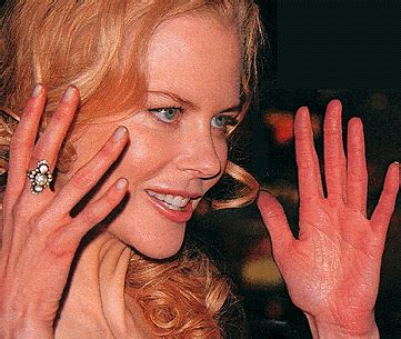 famous people with herpes picture 7