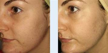 needling in for acne scars in california picture 1