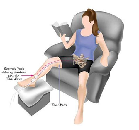 where to place electros for electrical stimulation of picture 2