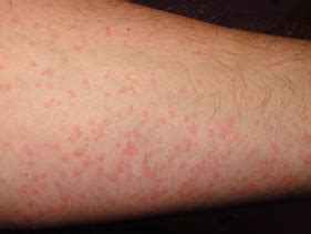 google natural herbs for hives symptoms picture 9