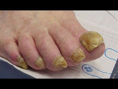 does nail fungus affect overal health picture 12