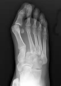 lisfranc joint picture 3