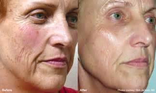 burns from lumenis ipl skin treatments picture 2