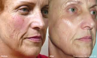 fractal skin procedure picture 11