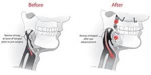 sleep apnea causes picture 5