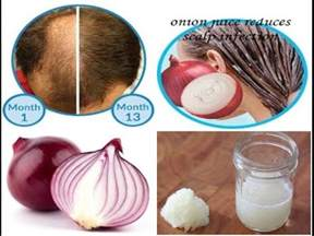 red onion hair removal picture 1
