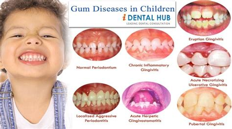 children's normal teeth images picture 6
