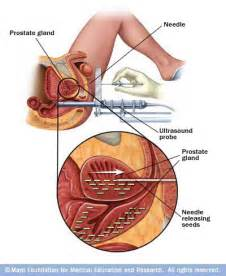 Best clinic for prostate cancer research picture 2